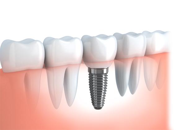 Implants-img3