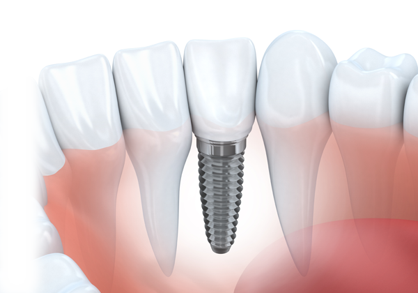 Implants-img4