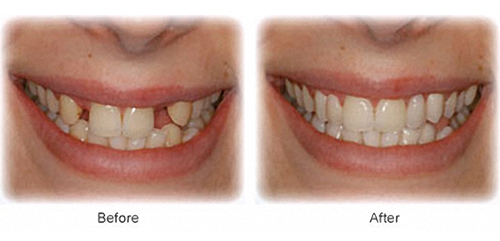teeth_gap